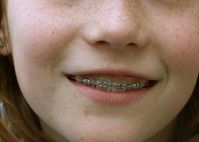 Zahnvorsorge hilft Geld sparen